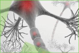 IV Encuentro Esclerosis  múltiple